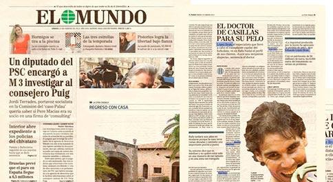 Trasplante-de-pelo.-Dr.-Eduardo-López-Bran.-EL-MUNDO-mini