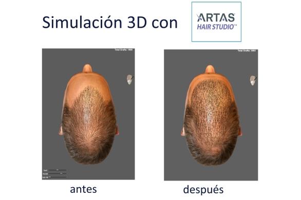 Robot Artas Lopez Bran trasplante de pelo