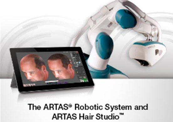 robot artas trasplante de pelo Dr. Eduardo López Bran