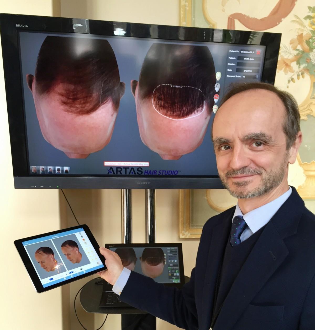 eduardo lopez bran trasplante de pelo Artas Hair studio