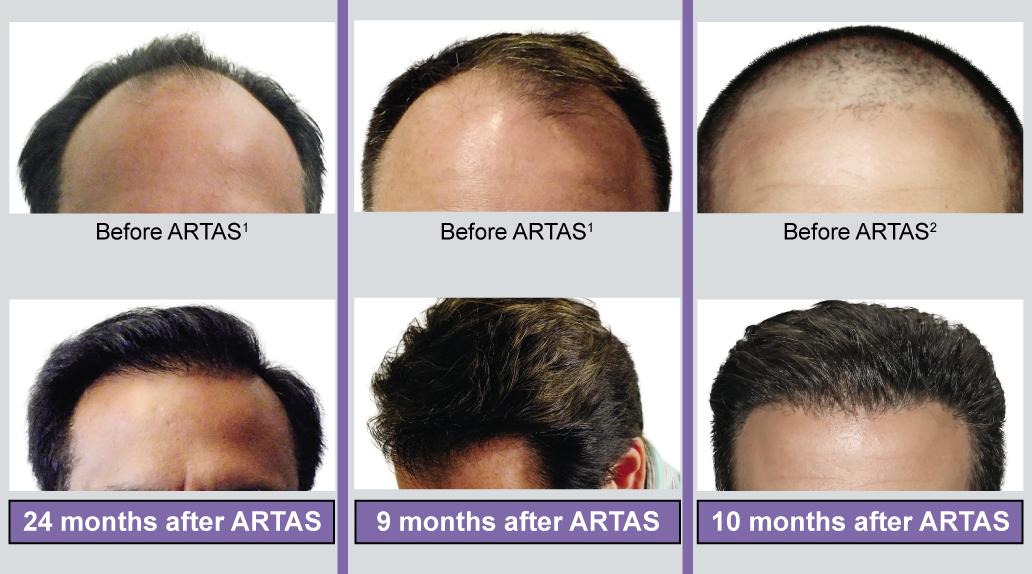 pelo antes y después robot artas