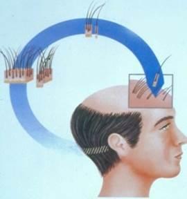 Cómo se hace un trasplante de pelo - Eduardo López Bran