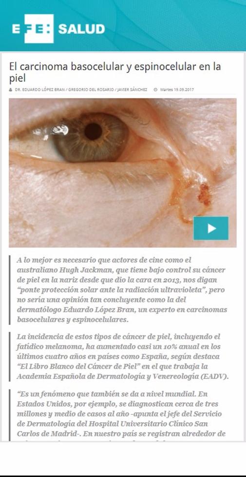 Tratamiento Carcinoma Dermatología Cáncer de piel. Dr. López Bran
